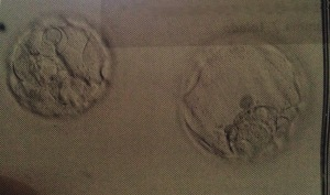 embryos